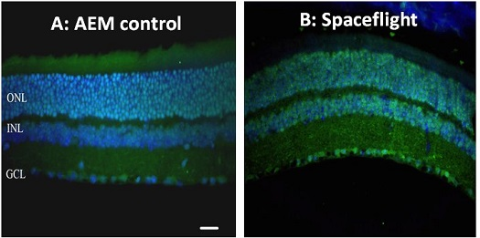 Retina tissue from a normal mouse (A) and after spaceflight (B) indicate oxidative damage, identified with green fluorescence. Nuclei are stained blue. (Credit: Radiation Research)